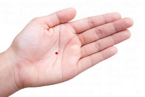 Nốt ruồi son ở lòng bàn tay